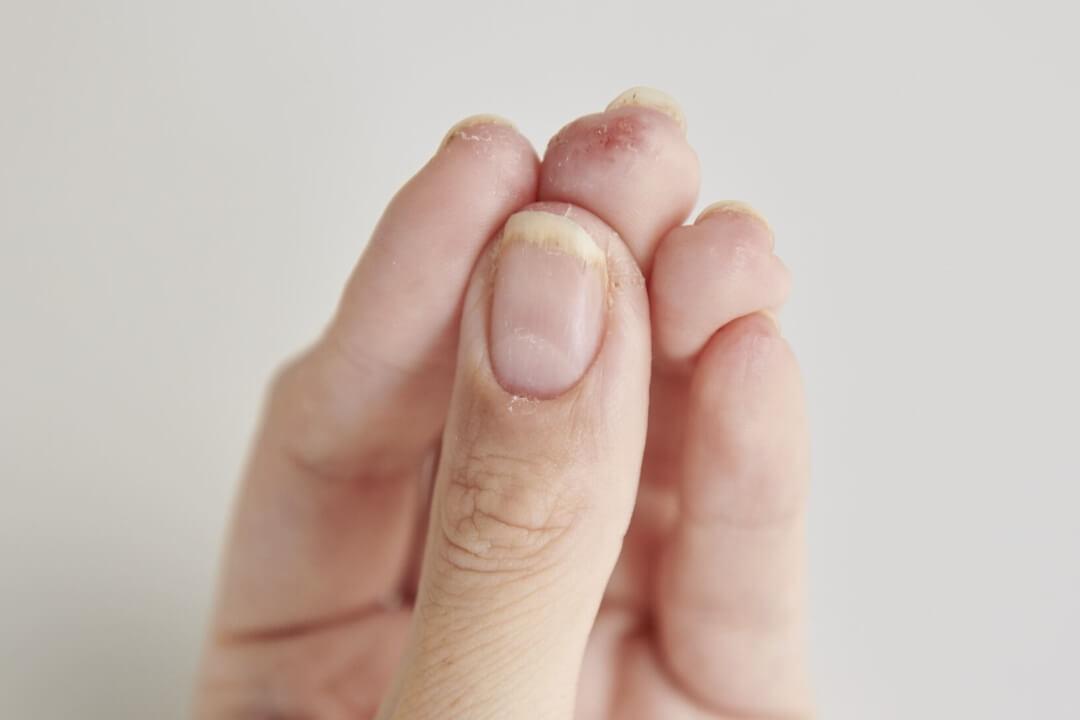 消毒ダメージ爪とは