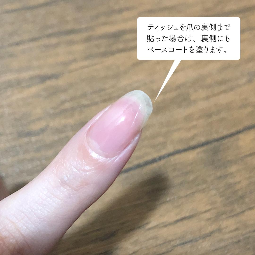 処置 た 爪 割れ が